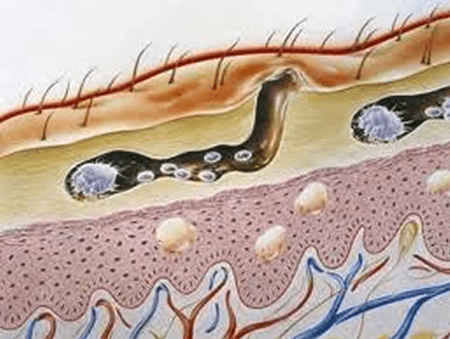 scabies burrow under skin picture
